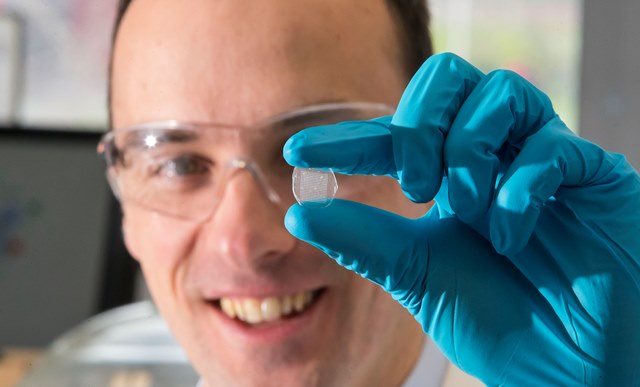 Dr Niall O'Reilly, PMBRC , holding a drug-loaded microneedle array which allows for more efficient means of drug delivery through the skin. Photo by Patrick Browne.
